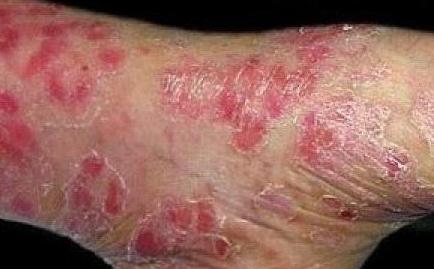 如何治疗牛皮鲜皮肤病
