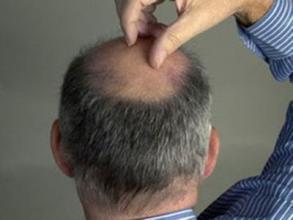 头顶脱发是什么原因