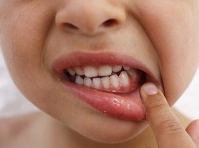 小孩蛀牙牙痛怎么办