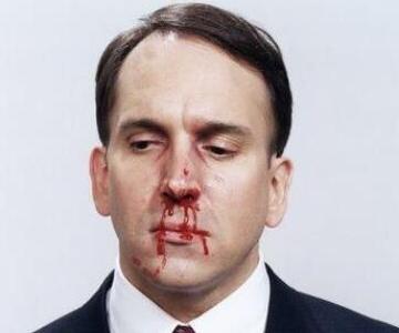 鼻子无故流鼻血是怎么回事