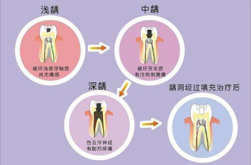 简单的牙齿保健